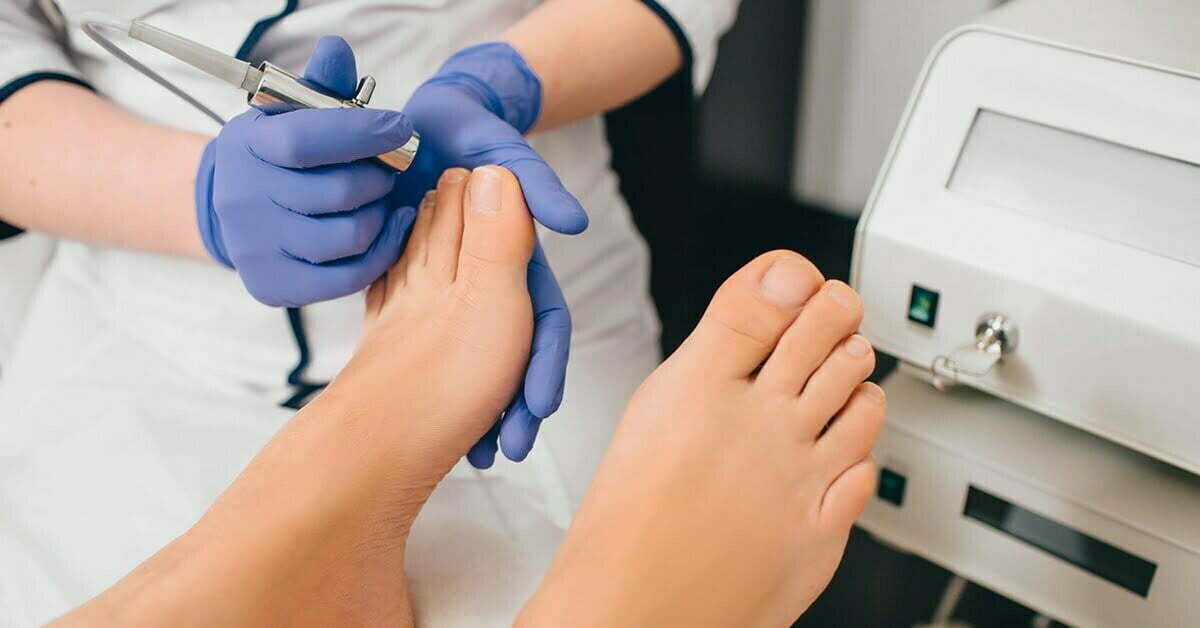 Treat Foot Corns without any Surgery!