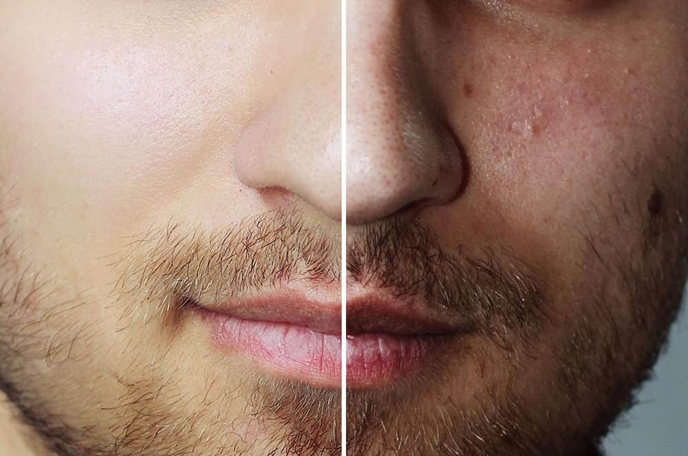 Laser Treatment for Acne Scars In Delhi